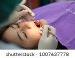 dentist examining a patient's... | Shutterstock . vector #1007637778