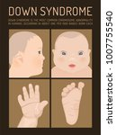 symptoms of down syndrome... | Shutterstock .eps vector #1007755540