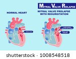 heart with mitral valve... | Shutterstock .eps vector #1008548518