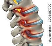 spinal stenosis as a... | Shutterstock . vector #1008687700