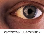 Small photo of Obstructive Jaundice with severe yellowish discoloration of Eyes.