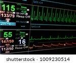 vital sign ekg monitor.   Shutterstock . vector #1009230514