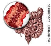 crohns disease or crohn illness ... | Shutterstock . vector #1010588680