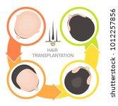 hair transplantation surgery 4... | Shutterstock .eps vector #1012257856