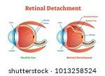 retinal detachment vector... | Shutterstock .eps vector #1013258524
