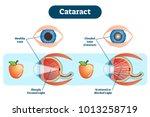 cataract vector illustration... | Shutterstock .eps vector #1013258719