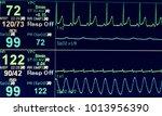 Stock photo vital sign ekg monitor 1013956390