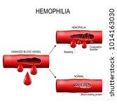 hemophilia. damaged blood... | Shutterstock .eps vector #1014163030