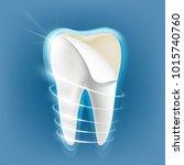 dental porcelain veneers on a... | Shutterstock . vector #1015740760
