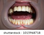mouth with four prosthetic... | Shutterstock . vector #1015968718