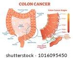 colon cancer medical vector... | Shutterstock .eps vector #1016095450