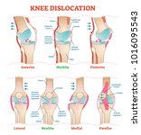 knee dislocations   medical... | Shutterstock .eps vector #1016095543