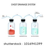 chest drainage system. fluid... | Shutterstock .eps vector #1016941399