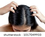 women head with dandruff caused ... | Shutterstock . vector #1017049933