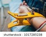 doctor with electrocardiogram...   Shutterstock . vector #1017285238