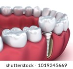 tooth implant and crown... | Shutterstock . vector #1019245669