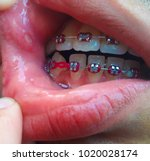 mouth ulcer is an ulcer that... | Shutterstock . vector #1020028174
