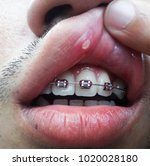 mouth ulcer is an ulcer that... | Shutterstock . vector #1020028180