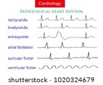 pathological ecg collection.... | Shutterstock .eps vector #1020324679
