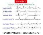 pathological ecg collection.... | Shutterstock .eps vector #1020324679