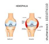 hemophilia. healthy kneee and... | Shutterstock .eps vector #1021076110