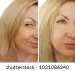 face woman wrinkles before and... | Shutterstock . vector #1021086340