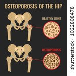 osteoporosis stages image.... | Shutterstock .eps vector #1022808478