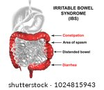 irritable bowel syndrome ibs... | Shutterstock . vector #1024815943