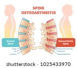 spine osteoarthritis anatomical ... | Shutterstock .eps vector #1025433970
