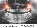 wisdom pain tooth oral dental... | Shutterstock . vector #1027434238
