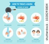 how to treat a burn infographic ... | Shutterstock .eps vector #1028293804