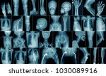 high quality x-ray collection body part and fracture area - stock photo