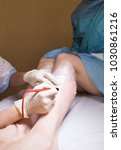 cosmetologist does needle... | Shutterstock . vector #1030861216