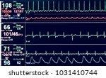 vital sign ekg monitor. | Shutterstock . vector #1031410744