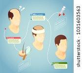 hair transplantation isometric... | Shutterstock .eps vector #1031603563