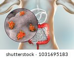 entamoeba histolytica protozoan ... | Shutterstock . vector #1031695183