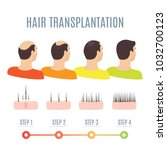 hair transplantation surgery... | Shutterstock .eps vector #1032700123