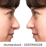 woman face before and after... | Shutterstock . vector #1032964228
