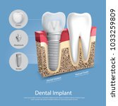 human teeth and dental implant... | Shutterstock .eps vector #1033259809