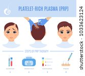 platelet rich plasma injection... | Shutterstock .eps vector #1033623124