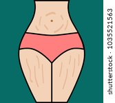 striae on thighs of woman.... | Shutterstock .eps vector #1035521563