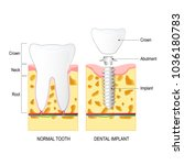 dental implant  and normal...   Shutterstock .eps vector #1036180783
