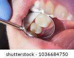 close up of a human rotten... | Shutterstock . vector #1036684750