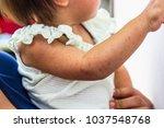 detail of left arm skin on... | Shutterstock . vector #1037548768