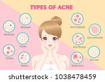 girl with types of acne on the... | Shutterstock .eps vector #1038478459