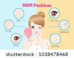 woman with skin problem on the... | Shutterstock .eps vector #1038478468