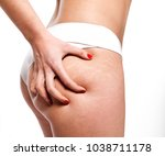 stretch marks on woman's... | Shutterstock . vector #1038711178
