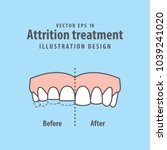 attrition treatment comparison... | Shutterstock .eps vector #1039241020