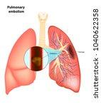 pulmonary  embolism. vector...   Shutterstock .eps vector #1040622358
