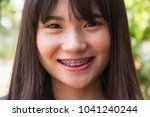asian woman happy smile braces... | Shutterstock . vector #1041240244
